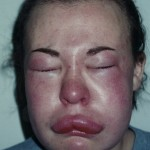 Facial Swelling 3_3
