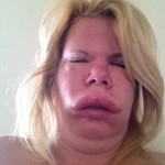 Facial Swelling 6_2